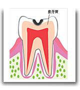 やの歯科 矯正歯科 出雲 歯医者 虫歯 島根 斐川 インプラント