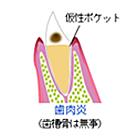 やの歯科 歯医者 斐川 島根 インプラント 矯正
